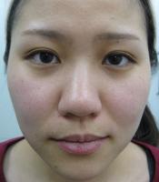 ヒアルロン酸隆鼻治療前
