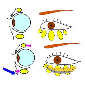 眼窩脂肪 (目の周囲の脂肪)