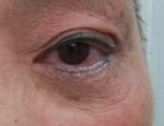 目の下脱脂