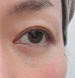 下眼瞼除皺術