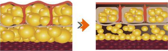 脂肪細胞を破壊・溶解します